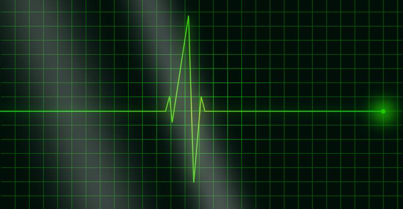 ECG, le contrôle technique de votre coeur